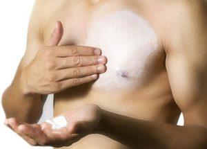 male breast formation
